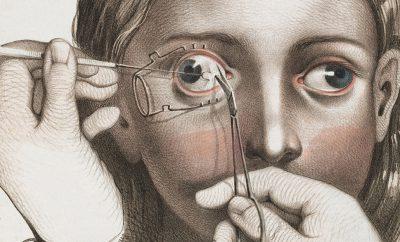 surgery-victorian-era-fb.jpg